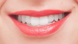 ホワイトニング歯科